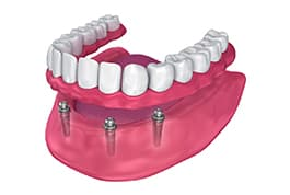 dentures and partials mcdonough ga - family dentists henry county